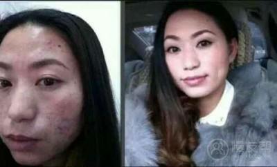 有斑點,痘痘等肌膚問題快看過來